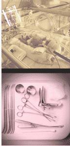 prematuro/attrezzi abortivi